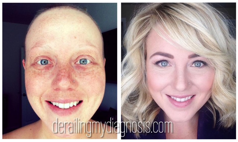 Before and After Cancer Stephanie Madsen